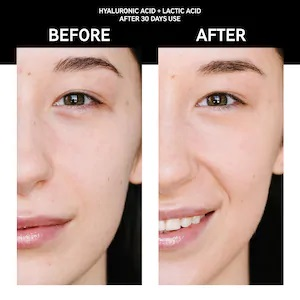 serum hyaluronic acid the inkey list dưỡng ẩm before and after
