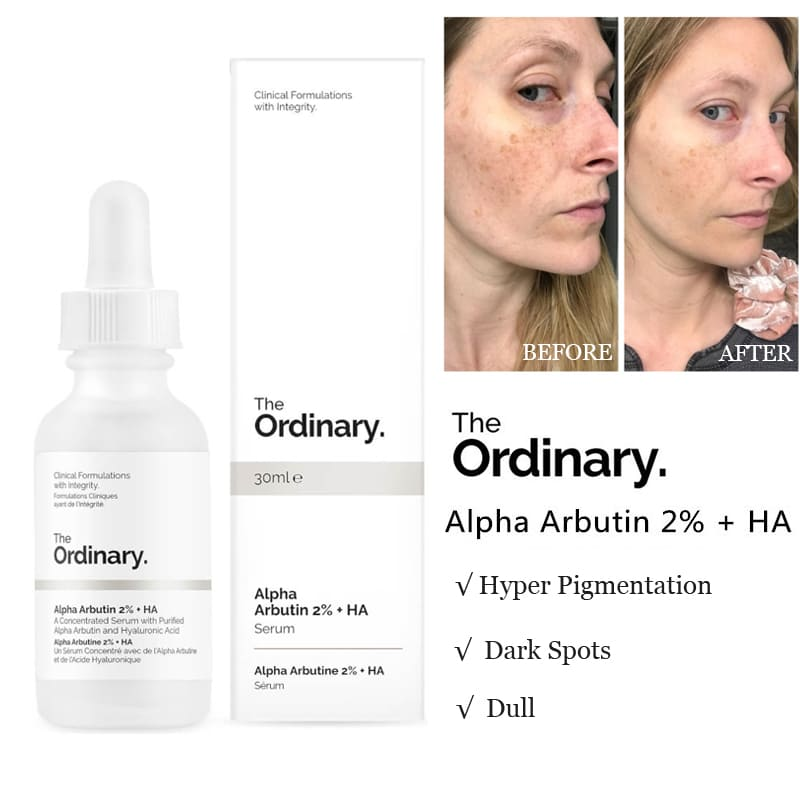 serum alpha arbutin the ordinary 2