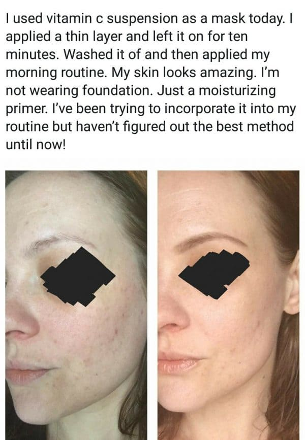 vitamin c the ordinary suspension before and after