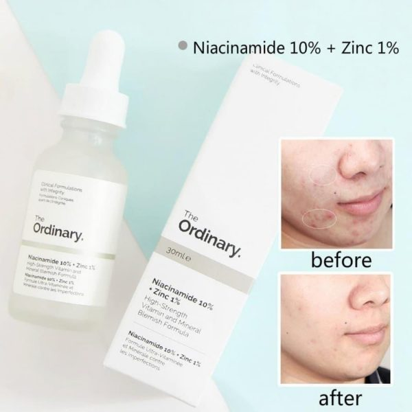 serum niacinamide the ordinary 5