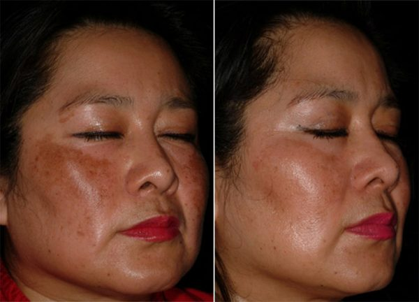 niacinamide inkey before after