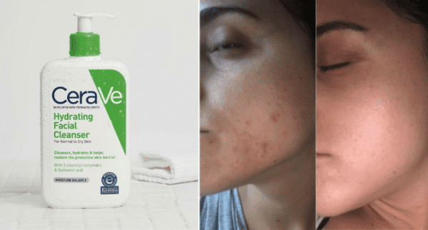 hydrating facial cleanser cerave 5